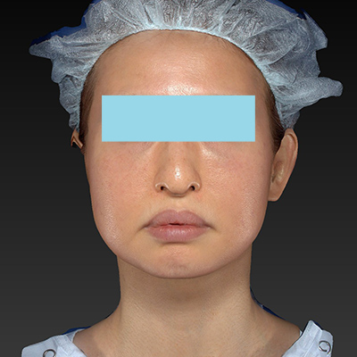 新宿ラクル美容外科クリニック 山本厚志 「テスリフト ソフト(TESSLIFT SOFT)」 手術前 10月3日