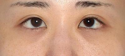 新宿ラクル美容外科クリニック 山本厚志 下眼瞼下制術(グラマラスライン形成術(皮膚切開法))+目尻切開 手術後3ヶ月目 11月25日