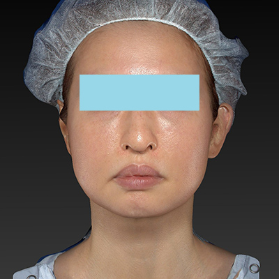 新宿ラクル美容外科クリニック 山本厚志 「テスリフト ソフト(TESSLIFT SOFT)」 手術後3ヶ月目 10月16日