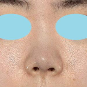 新宿ラクル美容外科クリニック 山本厚志 鼻尖軟骨形成(鼻尖縮小+α法) 手術直後 10月13日