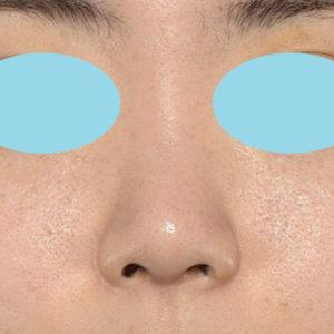 新宿ラクル美容外科クリニック 山本厚志 鼻尖軟骨形成(鼻尖縮小+α法) 手術後3ヶ月目 1月12日
