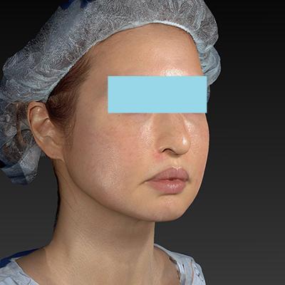 新宿ラクル美容外科クリニック 山本厚志 「テスリフト ソフト(TESSLIFT SOFT)」 手術後2ヶ月目 10月3日