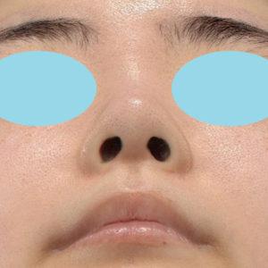 新宿ラクル美容外科クリニック 山本厚志 鼻尖軟骨形成(鼻尖縮小+α法) 手術前 10月13日