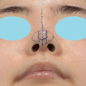 新宿ラクル美容外科クリニック 山本厚志 鼻尖軟骨形成(鼻尖縮小+α法) デザイン 10月13日