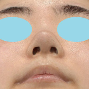 新宿ラクル美容外科クリニック 山本厚志 鼻尖軟骨形成(鼻尖縮小+α法) 手術後1週間目 10月13日