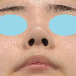 新宿ラクル美容外科クリニック 山本厚志 鼻尖軟骨形成(鼻尖縮小+α法) 手術後2ヶ月目 1月12日