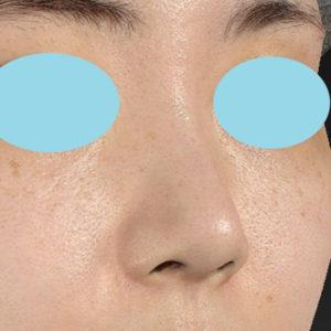 新宿ラクル美容外科クリニック 山本厚志 鼻尖軟骨形成(鼻尖縮小+α法) 手術後1ヶ月目 10月13日