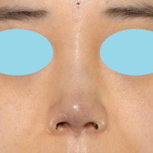 「耳介軟骨移植+鼻尖縮小(close法)+ BNLS COCO 6本(鼻根部)」 新宿ラクル美容外科クリニック 山本厚志 20代女性 手術直後 11月7日