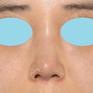 「耳介軟骨移植+鼻尖縮小(close法)+ BNLS COCO 6本(鼻根部)」 新宿ラクル美容外科クリニック 山本厚志 20代女性 手術後2ヶ月目 11月28日