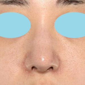 「耳介軟骨移植+鼻尖縮小(close法)+小鼻縮小+α」 新宿ラクル美容外科クリニック 20代女性 手術後3ヶ月目 2月23日