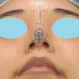 「耳介軟骨移植+鼻尖縮小(close法)+ BNLS COCO 6本(鼻根部)」 新宿ラクル美容外科クリニック 山本厚志 20代女性 デザイン 11月7日