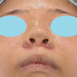 新宿ラクル美容外科クリニック 山本厚志 「貴族手術(鼻翼基部プロテーゼ)+ 小鼻縮小+α法」 手術後1週間目 11月18日