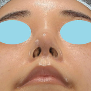 「耳介軟骨移植+鼻尖縮小(close法)+ BNLS COCO 6本(鼻根部)」 新宿ラクル美容外科クリニック 山本厚志 20代女性 手術後1ヶ月目 11月7日