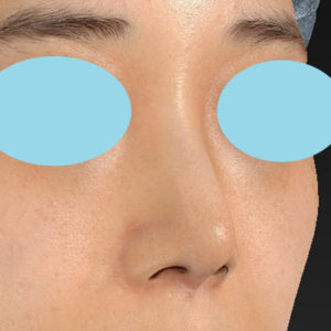 「耳介軟骨移植+鼻尖縮小(close法)+ BNLS COCO 6本(鼻根部)」 新宿ラクル美容外科クリニック 山本厚志 20代女性 手術前 11月7日