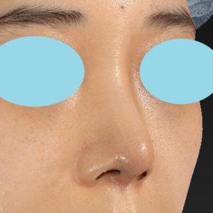 「耳介軟骨移植+鼻尖縮小(close法)+ BNLS COCO 6本(鼻根部)」 新宿ラクル美容外科クリニック 山本厚志 20代女性 手術後1週間目 11月7日