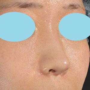 新宿ラクル美容外科クリニック 山本厚志 「貴族手術(鼻翼基部プロテーゼ)+ 小鼻縮小+α法」 手術後2ヶ月目 11月18日