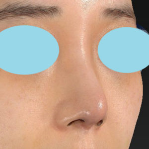 「耳介軟骨移植+鼻尖縮小(close法)+ BNLS COCO 6本(鼻根部)」 新宿ラクル美容外科クリニック 山本厚志 20代女性 手術後3ヶ月目 6月20日