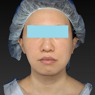新宿ラクル美容外科クリニック 山本厚志 「テスリフト ソフト(TESSLIFT SOFT)」 手術後12ヶ月目 5月3日