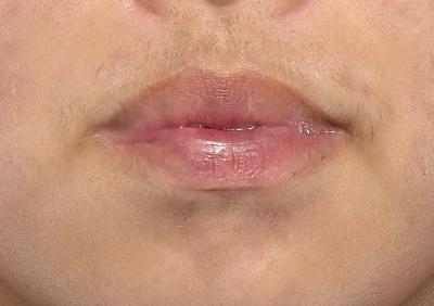 新宿ラクル美容外科クリニック 山本厚志 「口唇縮小術(上下口唇)」 手術前 12月10日