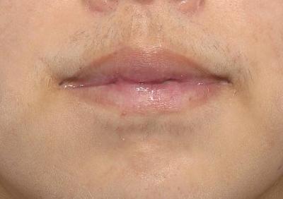 新宿ラクル美容外科クリニック 山本厚志 「口唇縮小術(上下口唇)」 手術後2ヶ月目 1月10日
