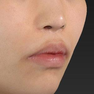 新宿ラクル美容外科クリニック 山本厚志 「口角挙上(スマイルリップ)」 手術前 12月9日