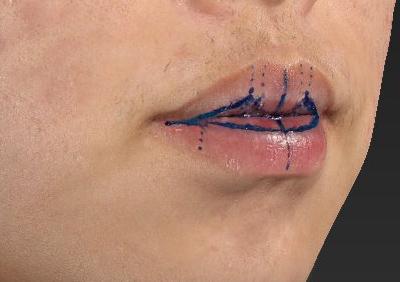 新宿ラクル美容外科クリニック 山本厚志 「口唇縮小術(上下口唇)」 手術直後 12月10日