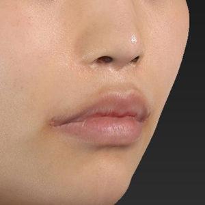 新宿ラクル美容外科クリニック 山本厚志 「口角挙上(スマイルリップ)」 手術後1ヶ月目 12月9日