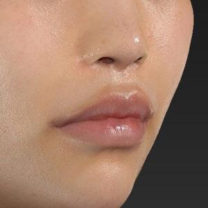 新宿ラクル美容外科クリニック 山本厚志 「口角挙上(スマイルリップ)」 手術後2ヶ月目 12月9日