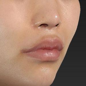新宿ラクル美容外科クリニック 山本厚志 「口角挙上(スマイルリップ)」 手術後3ヶ月目 1月13日