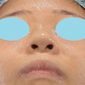 新宿ラクル美容外科クリニック 山本厚志 「貴族手術(鼻翼基部プロテーゼ)+ 小鼻縮小+α法」 手術後3ヶ月目 12月13日