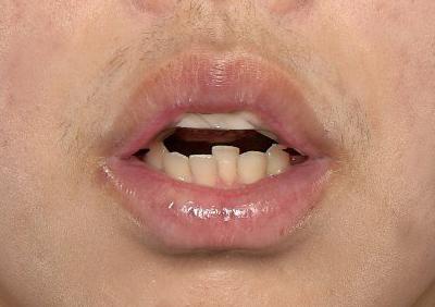 新宿ラクル美容外科クリニック 山本厚志 「口唇縮小術(上下口唇)」 手術後1ヶ月目 12月10日