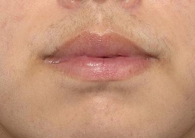 新宿ラクル美容外科クリニック 山本厚志 「口唇縮小術(上下口唇)」 手術後3ヶ月目 2月7日