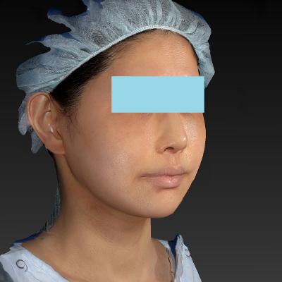 新宿ラクル美容外科クリニック 山本厚志 「テスリフト ソフト(TESSLIFT SOFT)」 手術後12ヶ月目 7月24日