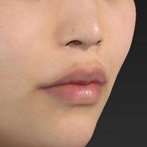 新宿ラクル美容外科クリニック 山本厚志 「口角挙上(スマイルリップ)」 手術後6ヶ月目 5月4日