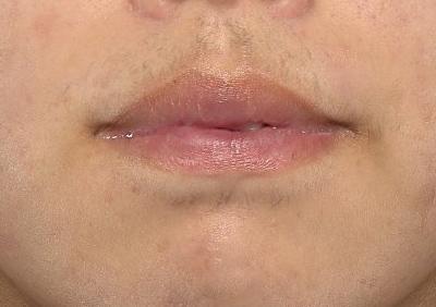 新宿ラクル美容外科クリニック 山本厚志 「口唇縮小術(上下口唇)」 手術後6ヶ月目 6月7日