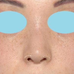 新宿ラクル美容外科クリニック 山本厚志 「小鼻縮小+α法」 手術後12ヶ月目 4月6日