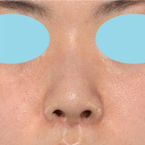 「耳介軟骨移植+鼻尖縮小(close法)」 新宿ラクル美容外科クリニック 30代女性 手術前 5月2日