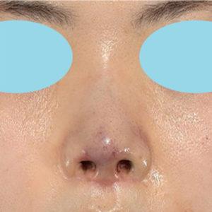 「耳介軟骨移植+鼻尖縮小(close法)」 新宿ラクル美容外科クリニック 30代女性 手術直後 5月2日