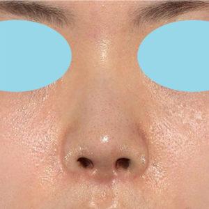 「耳介軟骨移植+鼻尖縮小(close法)」 新宿ラクル美容外科クリニック 30代女性 手術後1週間目 5月2日