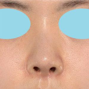 「耳介軟骨移植+鼻尖縮小(close法)」 新宿ラクル美容外科クリニック 30代女性 手術後1ヶ月目 5月2日
