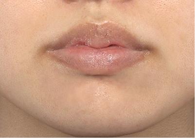 新宿ラクル美容外科クリニック 山本厚志 「M字リップ切開法 + 口唇縮小術」 手術後3ヶ月目 6月26日