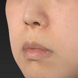 新宿ラクル美容外科クリニック 山本厚志 「口角挙上(スマイルリップ)+ 人中短縮術(リップリフト)」 手術前 5月7日