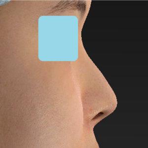 「耳介軟骨移植+鼻尖縮小(close法)」 新宿ラクル美容外科クリニック 30代女性 手術後2ヶ月目 5月2日