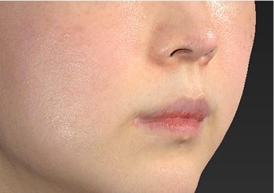 新宿ラクル美容外科クリニック 山本厚志 「人中短縮術(リップリフト)」 手術前 6月6日