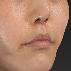 新宿ラクル美容外科クリニック 山本厚志 「口角挙上(スマイルリップ)+ 人中短縮術(リップリフト)」 手術後1ヶ月目 6月9日