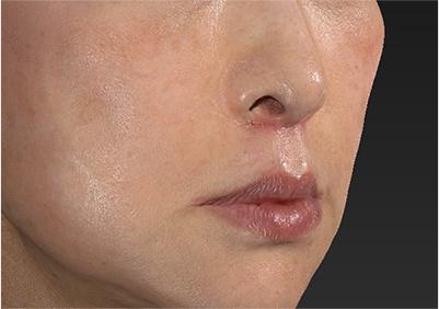 新宿ラクル美容外科クリニック 山本厚志 「人中短縮術(リップリフト)」 手術後1ヶ月目 6月22日