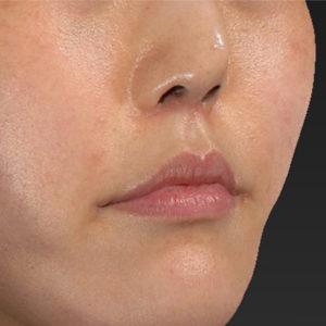 新宿ラクル美容外科クリニック 山本厚志 「口角挙上(スマイルリップ)+ 人中短縮術(リップリフト)」 手術後2ヶ月目 6月9日
