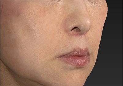 新宿ラクル美容外科クリニック 山本厚志 「人中短縮術(リップリフト)」 手術後2ヶ月目 6月22日
