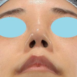 「耳介軟骨移植+鼻尖縮小(close法)+ BNLS COCO 6本(鼻根部)」 新宿ラクル美容外科クリニック 山本厚志 20代女性 手術後6ヶ月目 6月30日