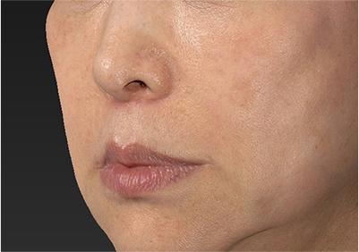 新宿ラクル美容外科クリニック 山本厚志 「人中短縮術(リップリフト)」 手術後3ヶ月目 6月22日